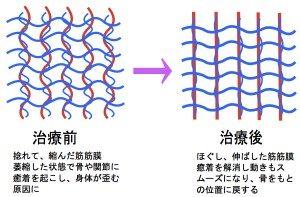 筋膜は身体のゆがみを作る