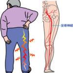 坐骨神経痛や足のしびれを治すには専門の当院へ。