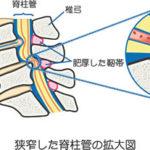 脊柱管狭窄症による腰痛や坐骨神経痛を治す方法。
